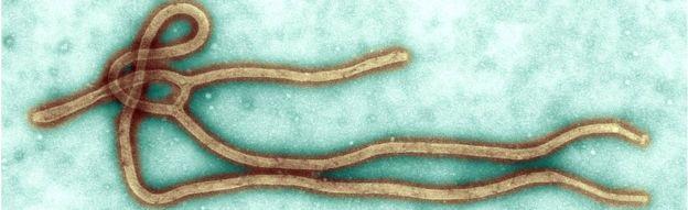 Ebola virus: Tanzania failing to provide details, WHO says